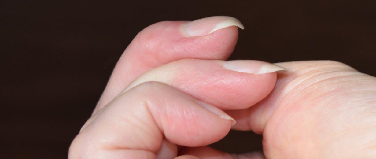 Gebogener Fingernagel Gibt Hinweis Auf Krankheit Rpr1