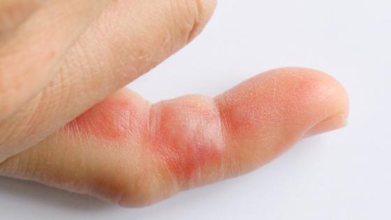 Wespenstich am Finger_CONTENT_jps/Shutterstock.jpg